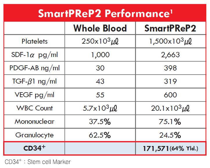 Smartprep2_performance